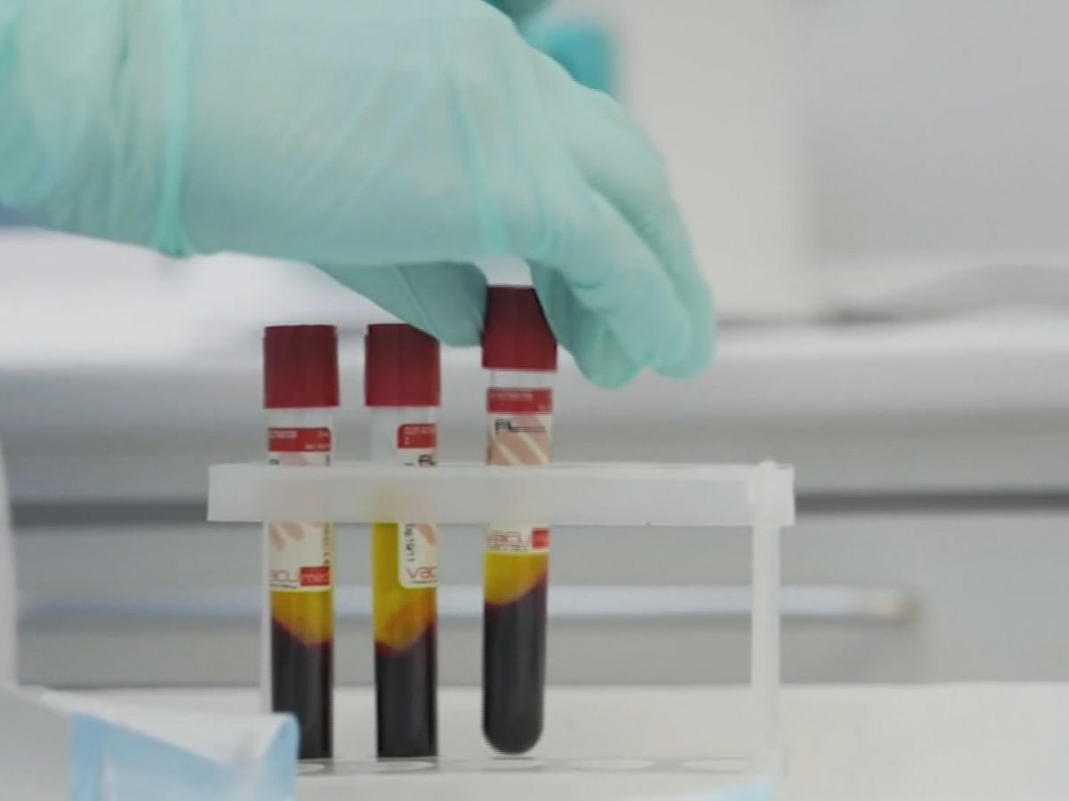 COVID-19 antibody screening could lead to life-saving plasma donations