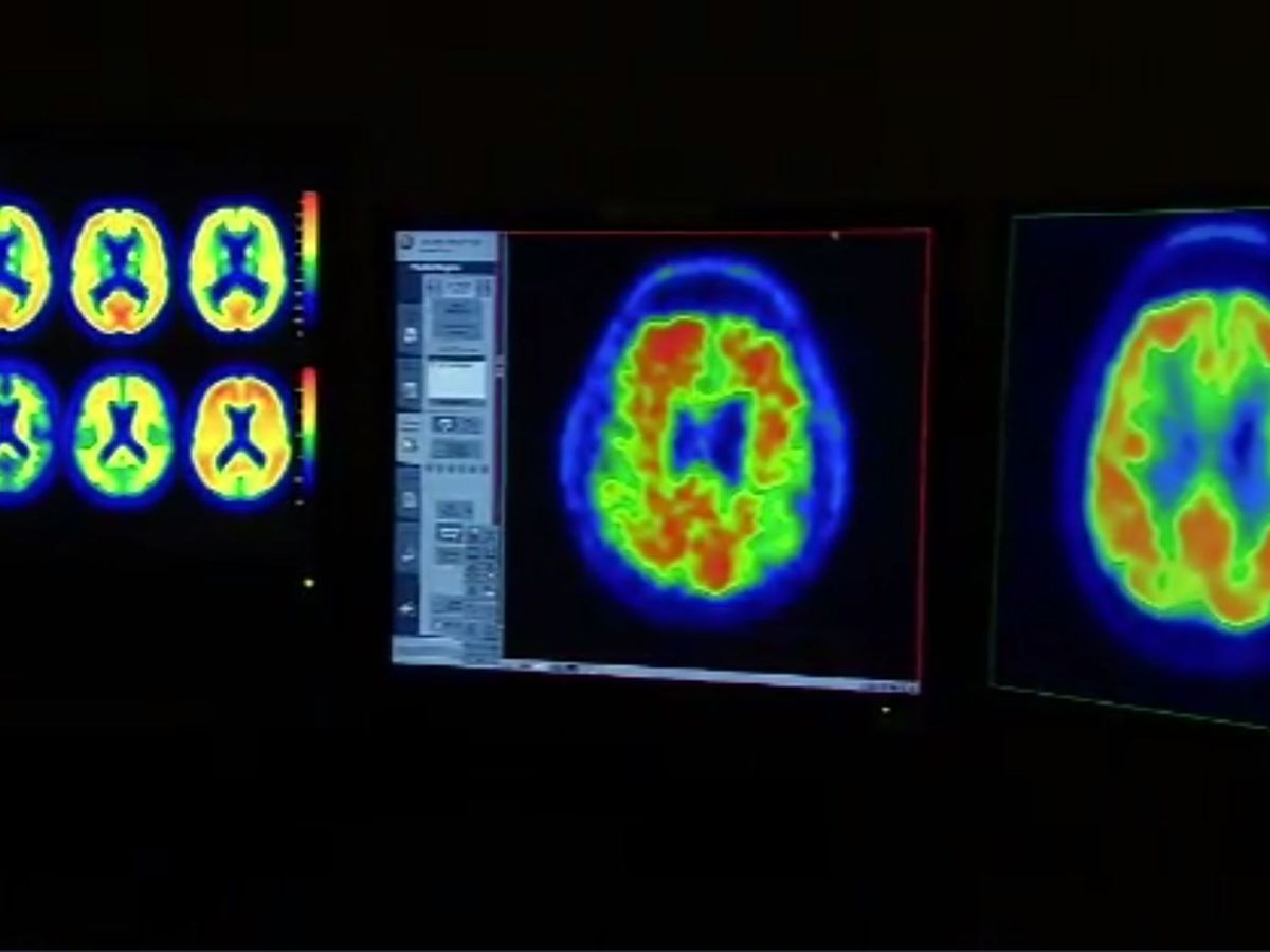 Parkinson's may affect brain before birth, study says