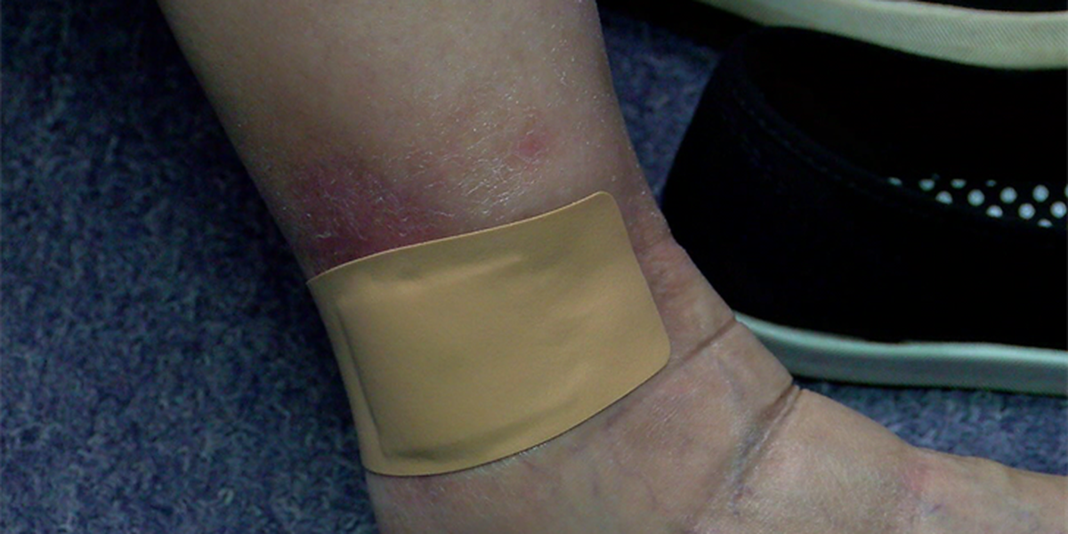 Woman nearly loses foot after spider bite