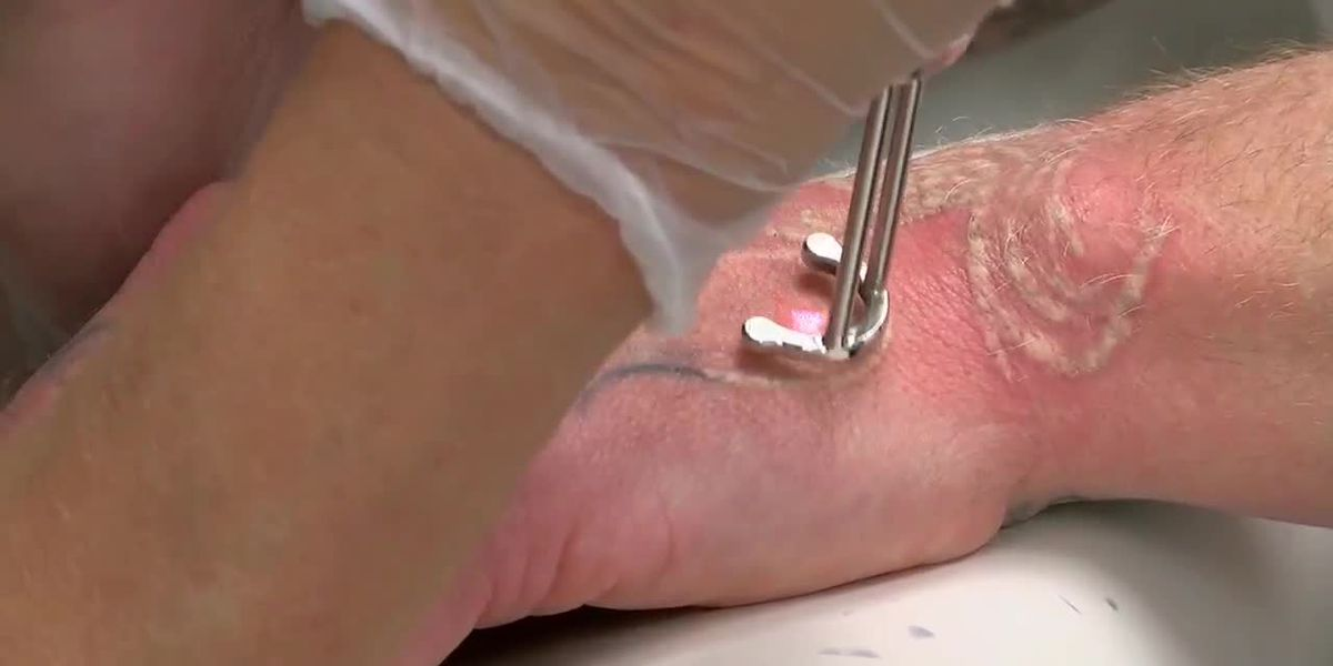 East Texas company offers free tattoo removal for mission residents