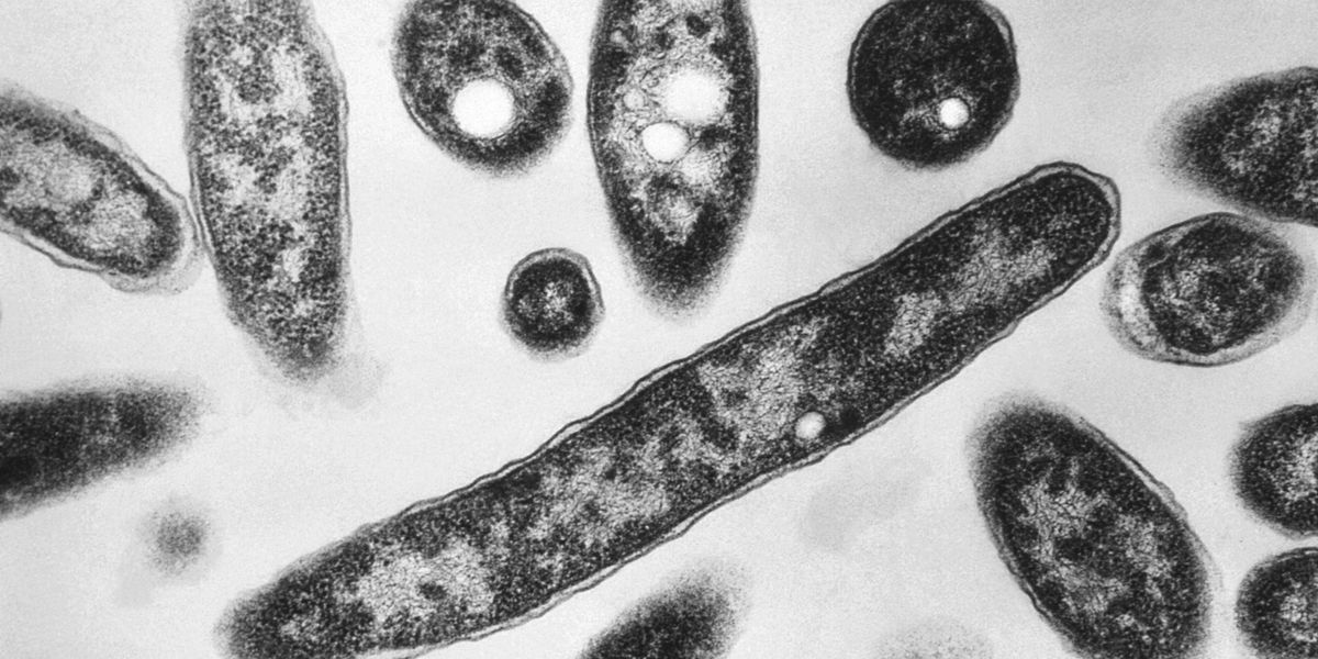 Legionnaires' cases are soaring in the US; experts call for stronger policies to fight the disease